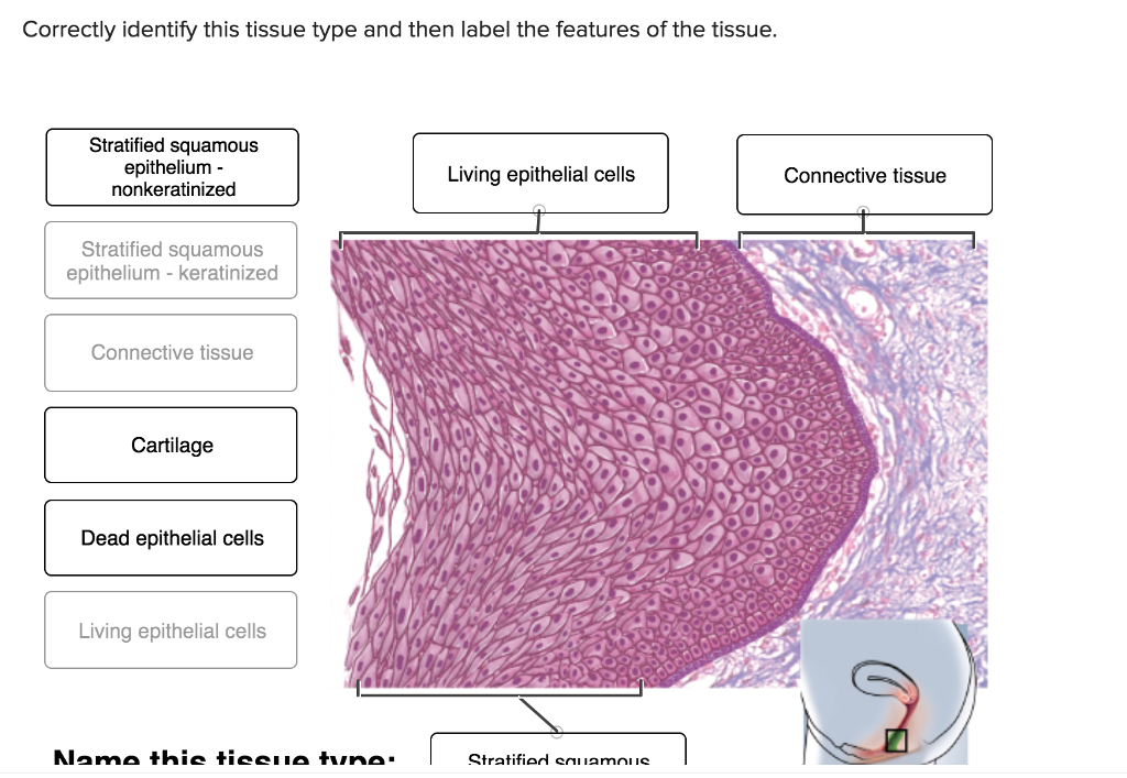 Correctly identify this tissue type and then label the features of the tissue Stratified squamous epithelium - nonkeratinized Living epithelial cells Connective tissue Stratified squamous epithelium- keratinized Connective tissue Cartilage Dead epithelial cells Living epithelial cells Stratified eniamniie