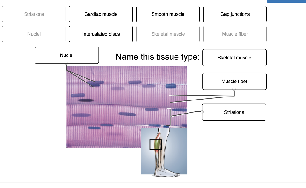 Striations Cardiac muscle Smooth muscle Gap junctions Nuclei Intercalated discs Skeletal muscle Muscle fiber Nuclei Name this tissue type: Skeletal muscle Muscle fiber Striations