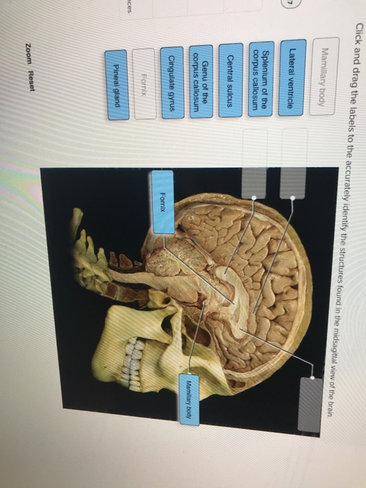 Click and drag the labels to the accurately identify the structures found in the midsagital view of the brain Mamillary body Lateral ventricie Splenium of the corpus callosum Central suicus Genu of the s callosum Mamillary body Cingulate gyrus Fomix Fornix ces zoom