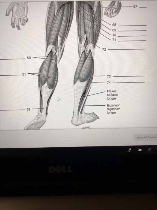 67 68 69 70 71 72 50 51 73 74 Flexor hallucis longus -Extensor 52 digitorum DANI Save All Answer