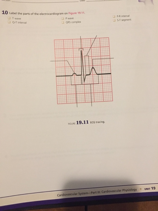 10 Label the parts of the electrocardiogram on Figure 19.11. 」T wave J P wave 」QRS complex P-R interval JS-T segment Q-T interval RIGURE 19.11 ECG tracing. Cardiovascular System-Part IlI: Cardiovascular Physiology UNIT 19