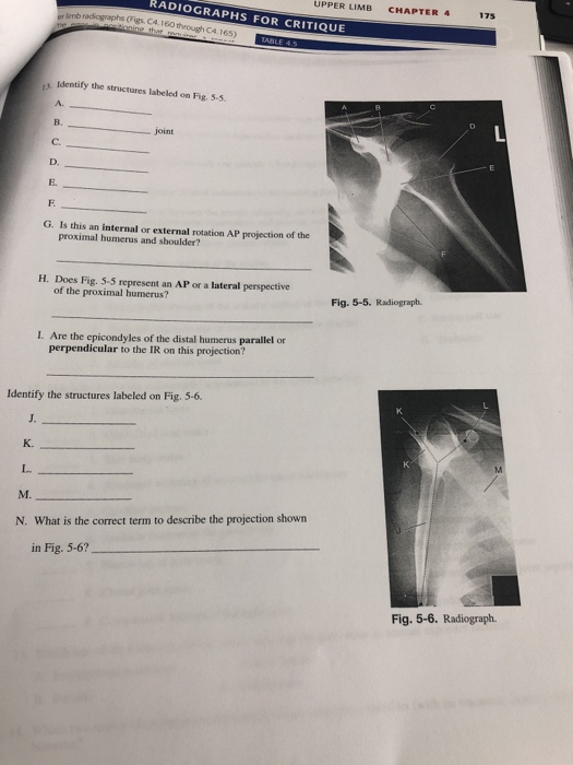 RADIOGRAPHS FOR UPPER LIMB CHAPTER 4 175 er imb radiographs (Figs. Ca.160 CRITIQUE s Identify the structures labeled on Fig.